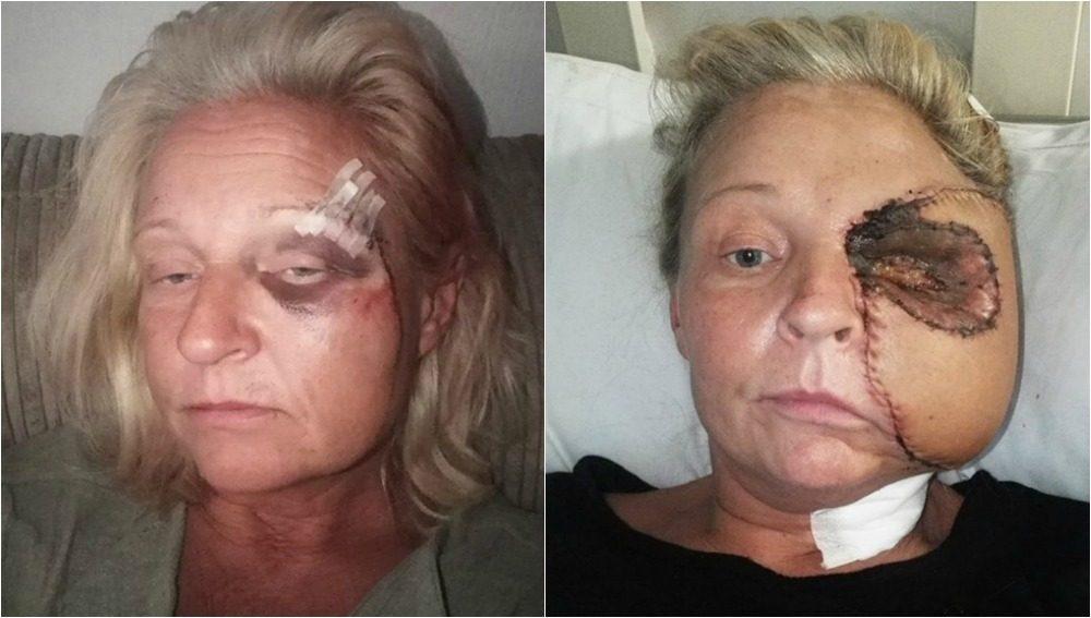 Mujer Pierde Media Cara Tras Golpearse Con Horno